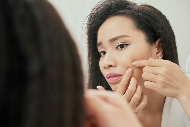 You Should Never Pop a Pimple