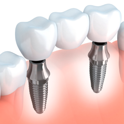 Dental Implant Restoration Technique